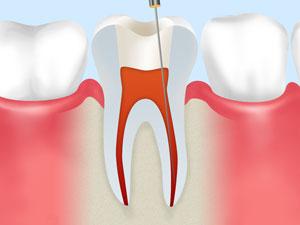 ②虫歯と神経の除去