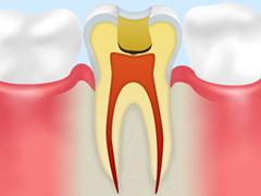 ②虫歯の除去