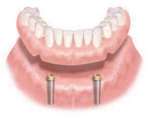 ロケーター義歯